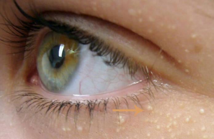poche d eau sous les yeux Recettes maison pour traiter les petites boules de graisse sous les yeux