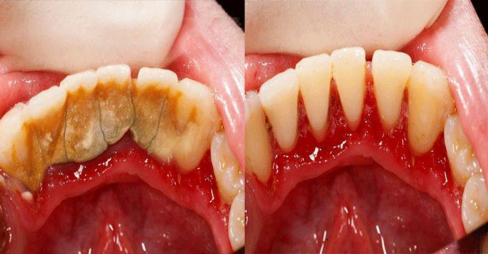 Astuce maison pour enlever le tartre dentaire soi-même