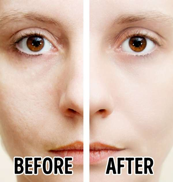 Appliquez de l'eau de riz sur votre peau pour réduire l'apparence des pores dilatés